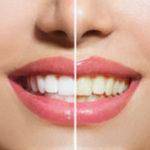 Отбеливание зубов: до и после (сравнение)
