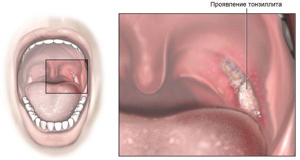 Хронический тонзиллит лечить при домашних условиях 197